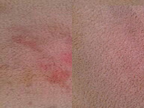 Kool-Aid Stain Before And After Cleaning In Stockbridge GA